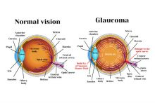 normal eye v glaucoma eye