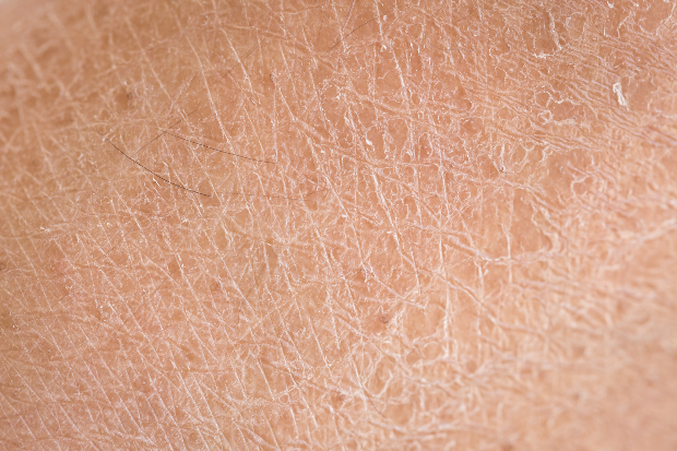 dry skin dermalex