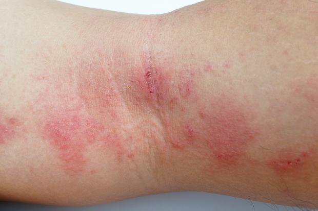 eczema dermalex