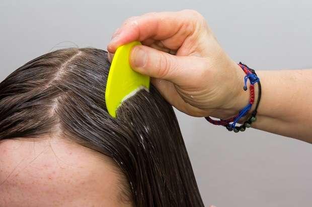 lice combing