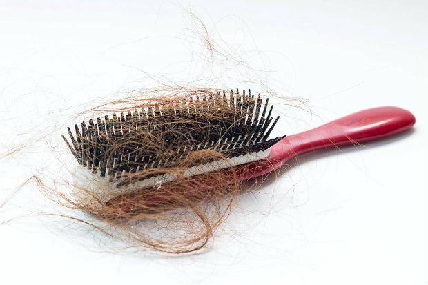 hair loss levothyroxine mur