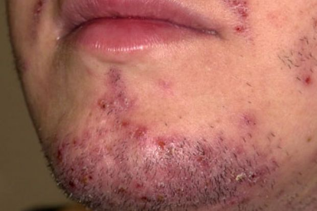 Shaving chin rash