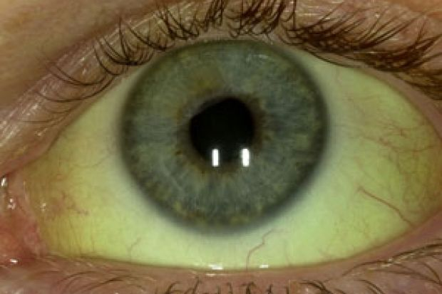 Should this patient with yellow eyes be referred ...