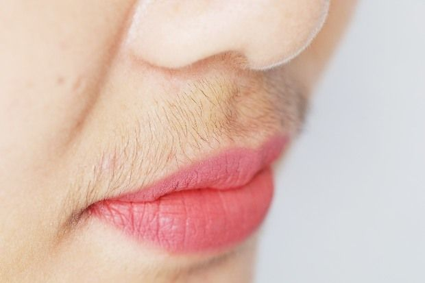 Hirsutism causes excessive hair growth in androgen-dependent areas