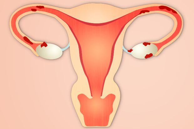 In endometriosis, the endometrial cells are found outside the uterine cavity
