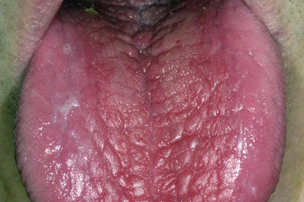 Scrotal tongue
