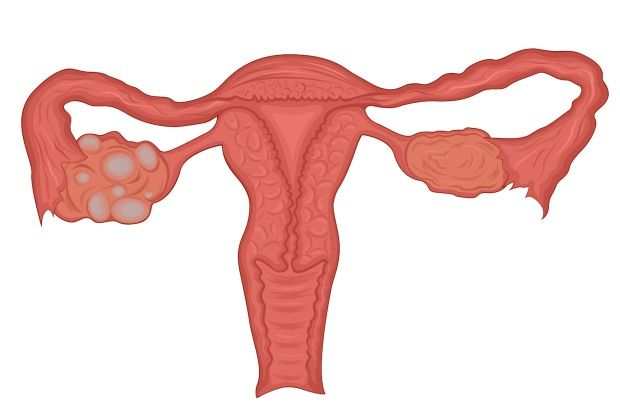 A polycystic ovary is slightly larger than a normal ovary and contains twice the number of follicles
