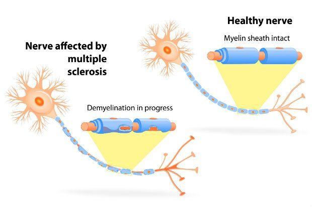 Multiple sclerosis nerve demylination
