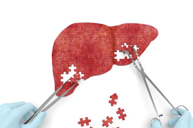Liver disease CPD