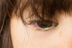 Bacterial conjunctivitis is associated with purulent discharge and crusting of the lids