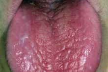 Scrotal tongue