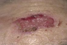 Image of a sore that turned out to be an amelanotic melanoma