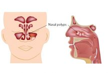 Around one in 25 people will develop nasal polyps at some point in their life