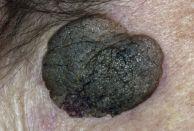 seborrhoeic keratosis